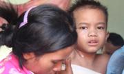 Bé trai bị mẹ từ chối chữa bỏng đã nhiễm trùng phần da ghép