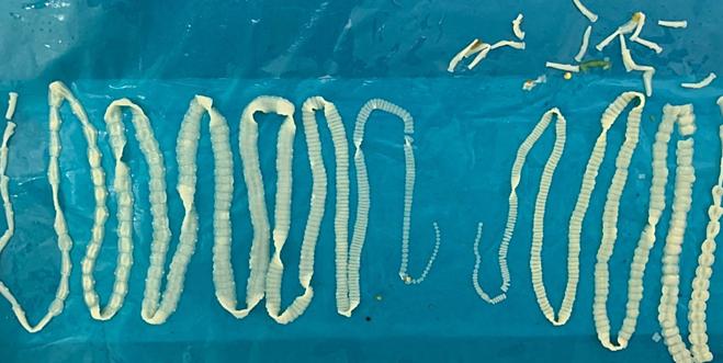 Cặp sán dây được xổ ra khỏi cơ thể bệnh nhân. Ảnh: Viện Sốt rét Ký sinh trùng Côn trùng.