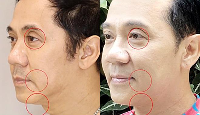 NSƯT Thành Lộc trẻ ra nhiều tuổi sau một tuần làm Thermage FLX + Bio Enzymes.