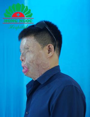 Anh Hà Văn Khuyên.