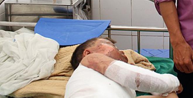 Bệnh nhi đang được điều trị tại Bệnh viện đa khoa tỉnh Điện Biên. Ảnh: Bệnh viện cung cấp.