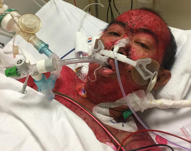 Khắp người bệnh nhân chằng chịt nốt hồng ban trong ngày đầu nhập viện. Ảnh: Minh Tâm.