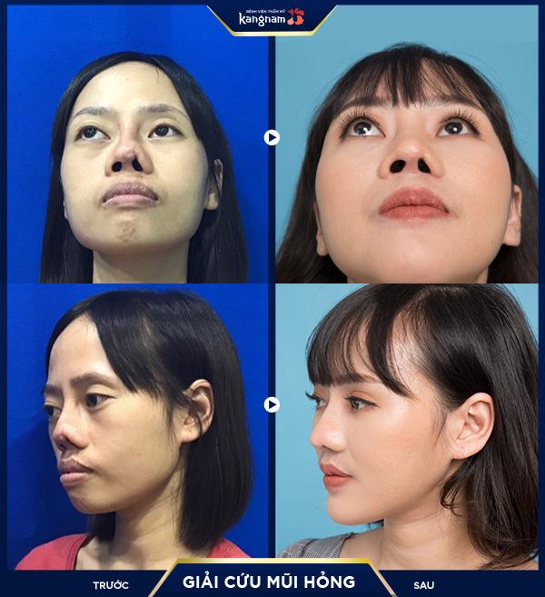 Các chuyên gia Bệnh viện Thẩm mỹ Kangnam đánh giá, mũi của Hằng được khắc phục đến 80%.