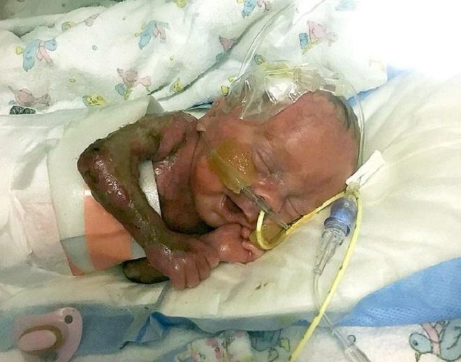 Kaiden sinh ra chỉ có 2% da trên mặt, tưởng như không qua khỏi. Ảnh: Daily star