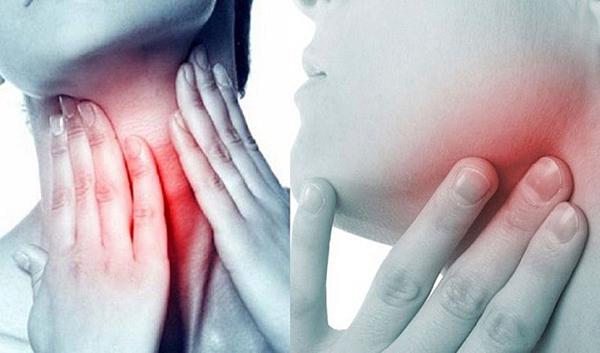 Ung thư vòm họng có biểu hiện không rõ ràng, khó phát hiện.