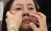 Biến chứng sau nâng mũi và cách khắc phục