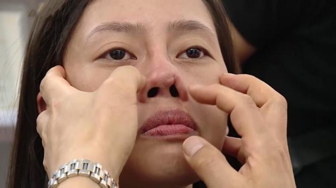 Hỏi đáp về biến chứng sau nâng mũi và giải pháp từ chuyên gia (xin edit) - 1