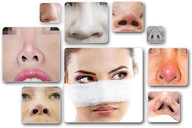 Hỏi đáp về biến chứng sau nâng mũi và giải pháp từ chuyên gia (xin edit)