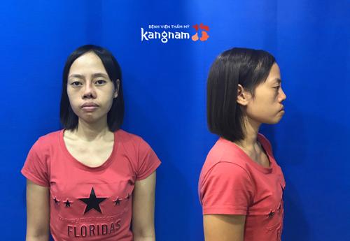 Thí sinh Vũ Thị Hằng đã trải qua 2 lần phẫu thuật thẩm mỹ hỏng.