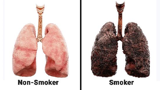 Phổi cua người hút thuốc lá lâu năm và người không hút.