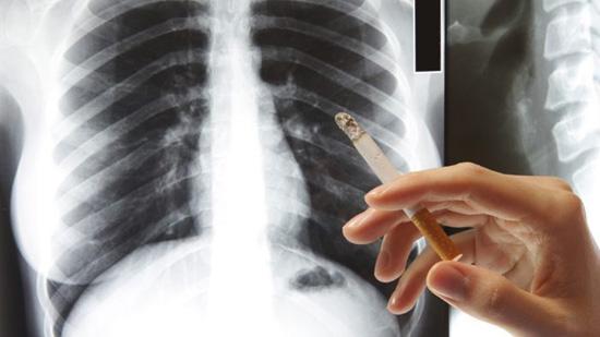 Sự khác biệt giữa phổi người hút thuốc lá lâu năm với người không hút - 1
