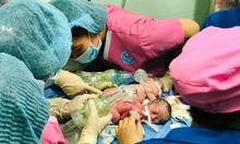 Hai bé gái Sài Gòn chào đời dính nhau vùng bụng chậu