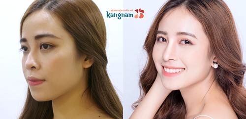 Cẩm Ly - khách hàng Bệnh viện Thẩm mỹ Kangnam đã từng tiêm filler tại một spa sau đó mũi bị biến dạng. Sau phẫu thuật nâng mũi cấu trúc 4D bạn đã sở hữu dáng mũi cao đẹp tự nhiên.