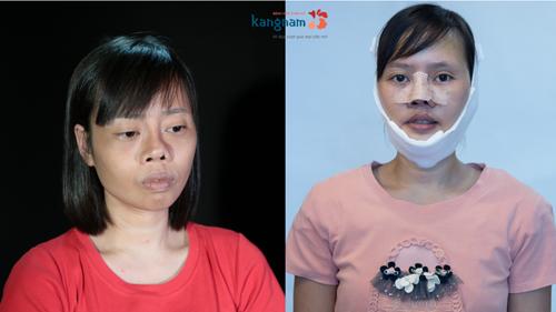 Vũ Thị Hằng - thí sinh Hành trình lột xác 2018 sau ca sửa mũi do tai nạn và 2 lần thẩm mỹ hỏng.