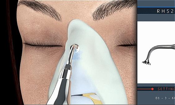 Hình ảnh mô tả những ca mũi khó cần can thiệp chỉnh xương, các bác si sẽ tiến hành nâng mũi cấu trúc 4D siêu âm dưới sự hỗ trợ của kỹ thuật Ultrasonic chuyên dụng.