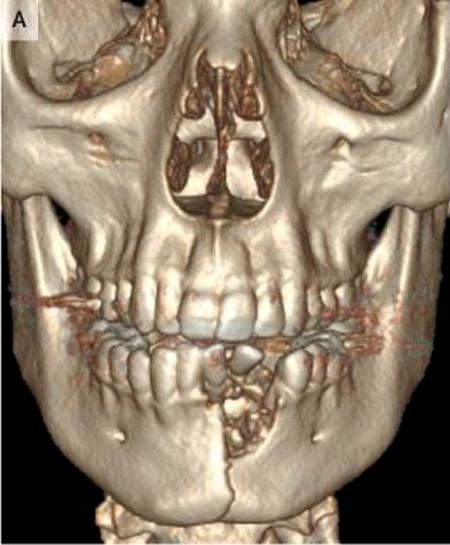 Ảnh chụp xương hàm của bệnh nhân 17 tuổi sau khi thuốc lá điện tử phát nổ. Ảnh: The New England Journal of Medicine.
