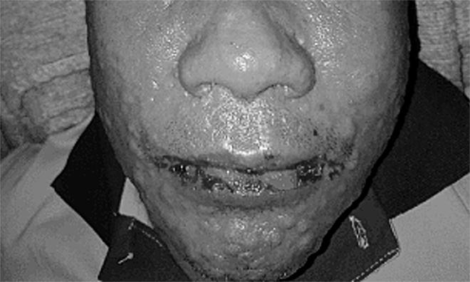 Bệnh nhân bị trợt da sau khi uống thước trị gout. Ảnh do bệnh viện cung cấp.