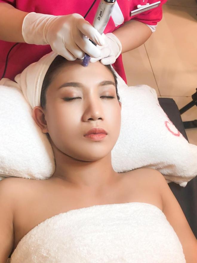 Nam Thư, Việt Hương bày cách trị mụn - 5