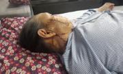Tạo hình vạt da má cho bà cụ 95 tuổi bị ung thư