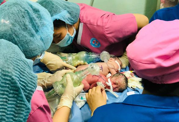 Cặp song sinh chào đời tại Bệnh viện Hùng Vương. Ảnh bệnh viện cung cấp.