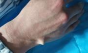 Mở nắp chai bia bằng đũa, người đàn ông bị thủng tay