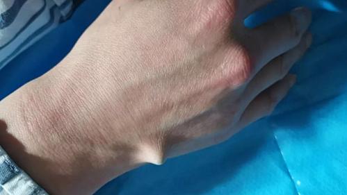 Chiếc đũa gần như đâm thủng bàn tay bệnh nhân. Ảnh: Asiawire.