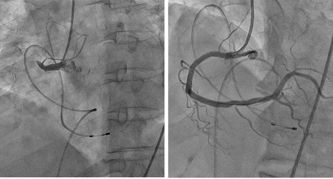 Hình ảnh chụp mạch vành của người bệnh trước (Hình trái) bị tắc và sau phẫu thuật (Hình phải)