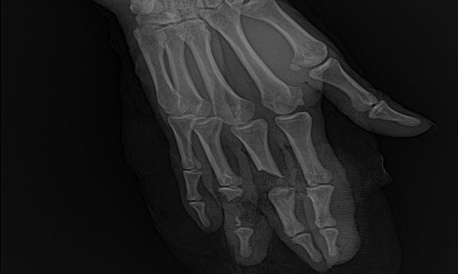 Phim chụp Xquang bàn tay tổn thường của bệnh nhân. Ảnh: Bệnh viện cung cấp.