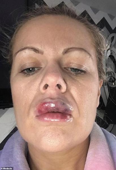 Môi trên của Lindsay sưng phồng, bầm tím, đau đớn sau khi tiêm làm đầy.