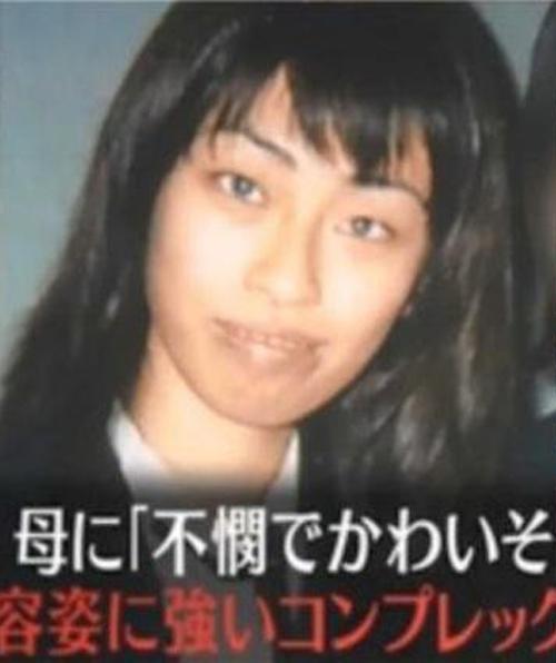 Hình ảnh trước khi phẫu thuật của Tsubaki. Ảnh: Oddity Central