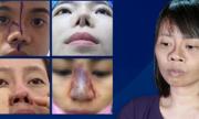 VnExpress phối hợp cùng Kangnam mở chuyên đề 'Giải cứu mũi hỏng'