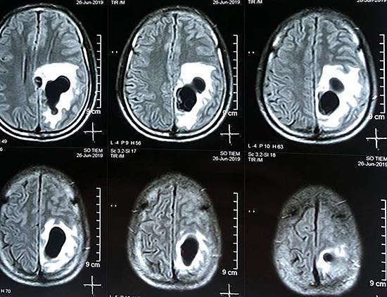 Hình chụp phim 5 ổ sán trên não người đàn ông ở bệnh viện Hữu nghị Đa khoa Nghệ An.