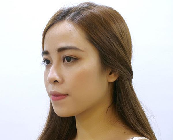 Phan Cẩm Ly khi chưa phẫu thuật mũi.