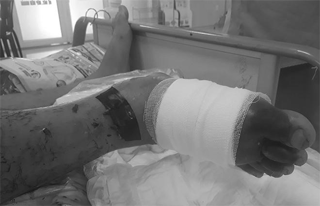 Bàn chân của bệnh nhân có nguy cơ hoại tử. Ảnh: Long Nhật.