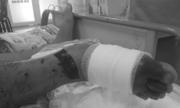 Người gác hang Sơn Đoòng bị rắn lục cắn nguy cơ hoại tử chân