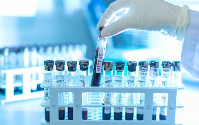 Giảm chọc ối oan nhờ xét nghiệm máu thai phụ - 1