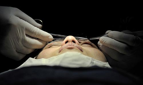 Một phụ nữ đang được phẫu thuật thẩm mỹ tại Lan Châu, tỉnh Cam Túc (Trung Quốc). Ảnh: AFP.