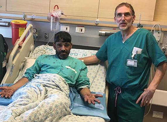 Cánh tay của Mahmoud sau phẫu thuật. Ảnh: Newsweek
