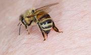 Cách sơ cứu khi bị ong chích