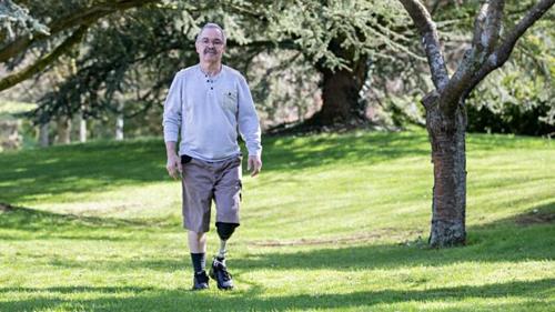John Roberts phải cắt bỏ chân trái và sử dụng chân giả. Ảnh: BBC.