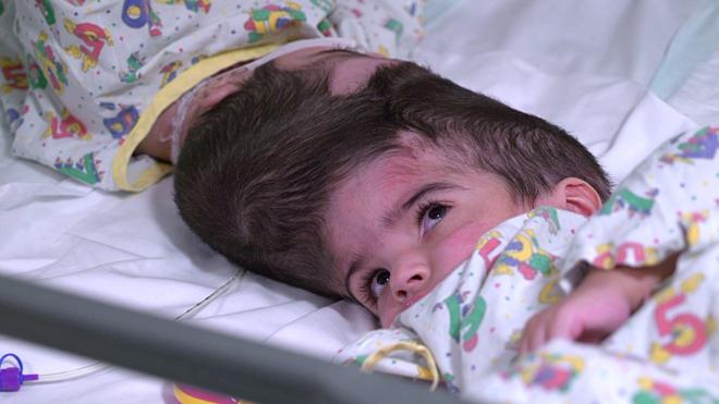 Phần hộp sọvà mạch máu của hai bé bị dính nhau.