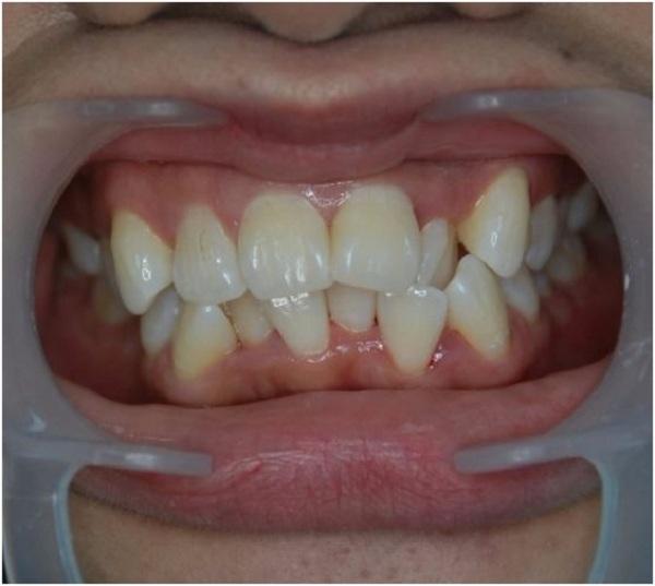 Răng khấp khểnh gây mất thẩm mỹ cho gương mặt.