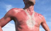 Nguy cơ ung thư da từ trò chơi ngày hè 'hình xăm cháy nắng'