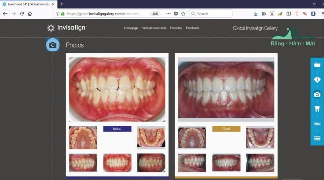 Chuyên gia cung cấp thông tin cụ thể về niềng răng Invisalign - 2