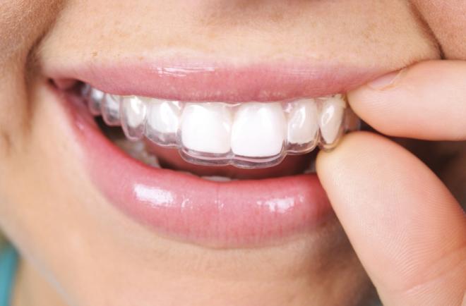 Các khay Invisalign trong suốt nên không ai biết bạn đang Niềng Răng