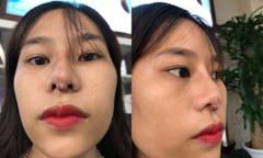 Cô gái 22 tuổi mũi nhiễm trùng, chảy mủ sau khi phẫu thuật thẩm mỹ tại spa