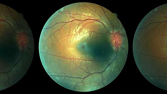 Chụp CT khối u phía sau mắt trái của bệnh nhân. Ảnh: Foxnews