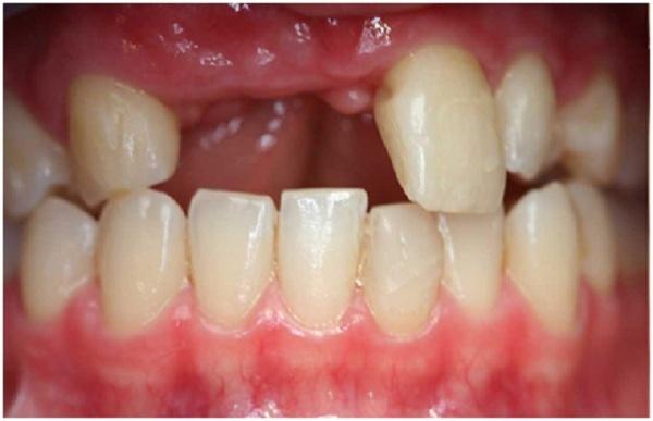 Mất răng sẽ gây ra nhiều hệ lụy đối với các răng còn lại và xương hàm.