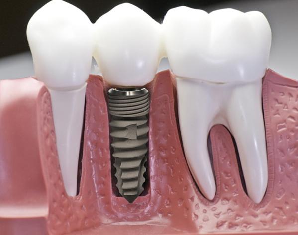 Bác sĩ nha khoa Phú Hòa gợi ý phương pháp cho người mất răng - 4