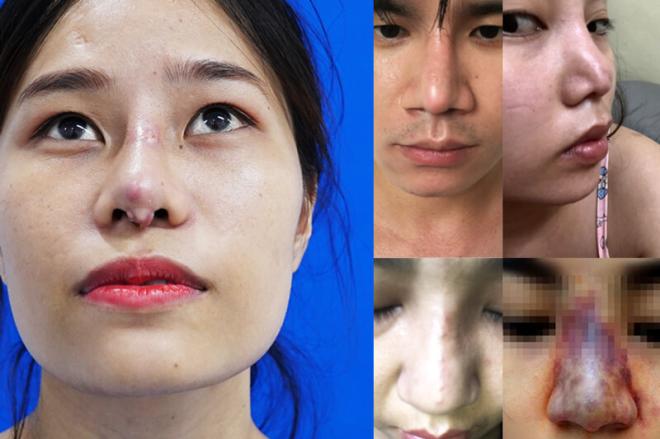 Mũi nhiễm trùng có thể dẫn đến nguy cơ hoại tử.
